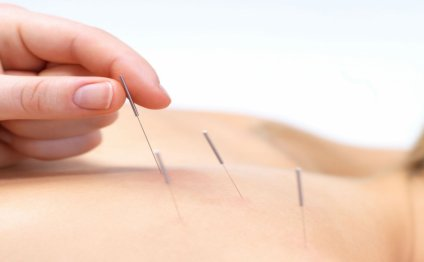What Is Acupuncture Injection