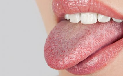 A dry mouth can be very