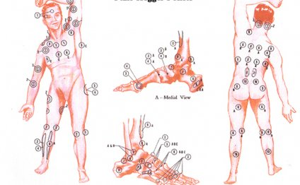Fibromyalgia Pain Trigger