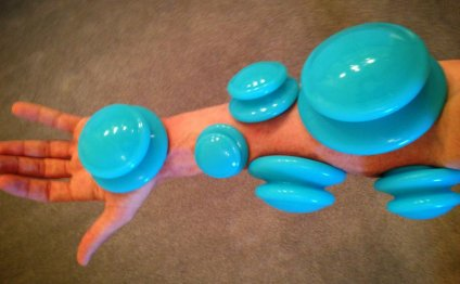 Carpal Tunnel Cupping Therapy