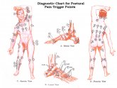 Trigger Points Massage