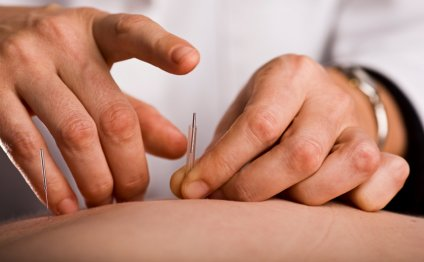 Acupuncture VS Massage